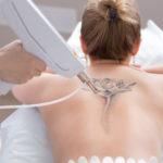 10 choses que j'aurais aimé savoir avant le dé-tatouage au laser
